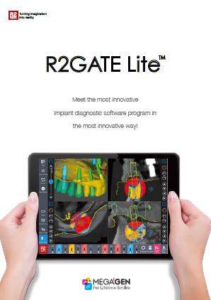 R2Gate_Lite