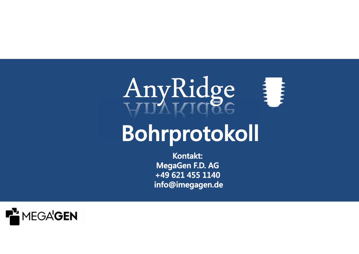 AnyRide Bohrprotokoll GER